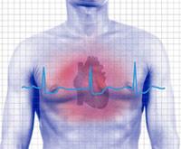 коронарные стенты, ритм сердца у пациента