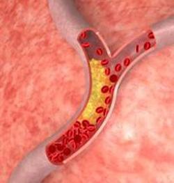 избыточный холестерин